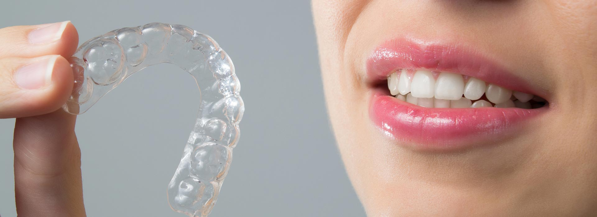 A woman holding a orthodontic clear aligner